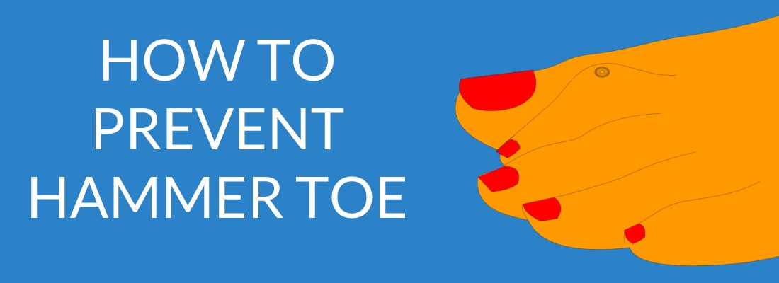 Hot to prevent hammer toe
