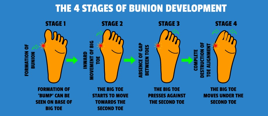 4 stages of bunion development