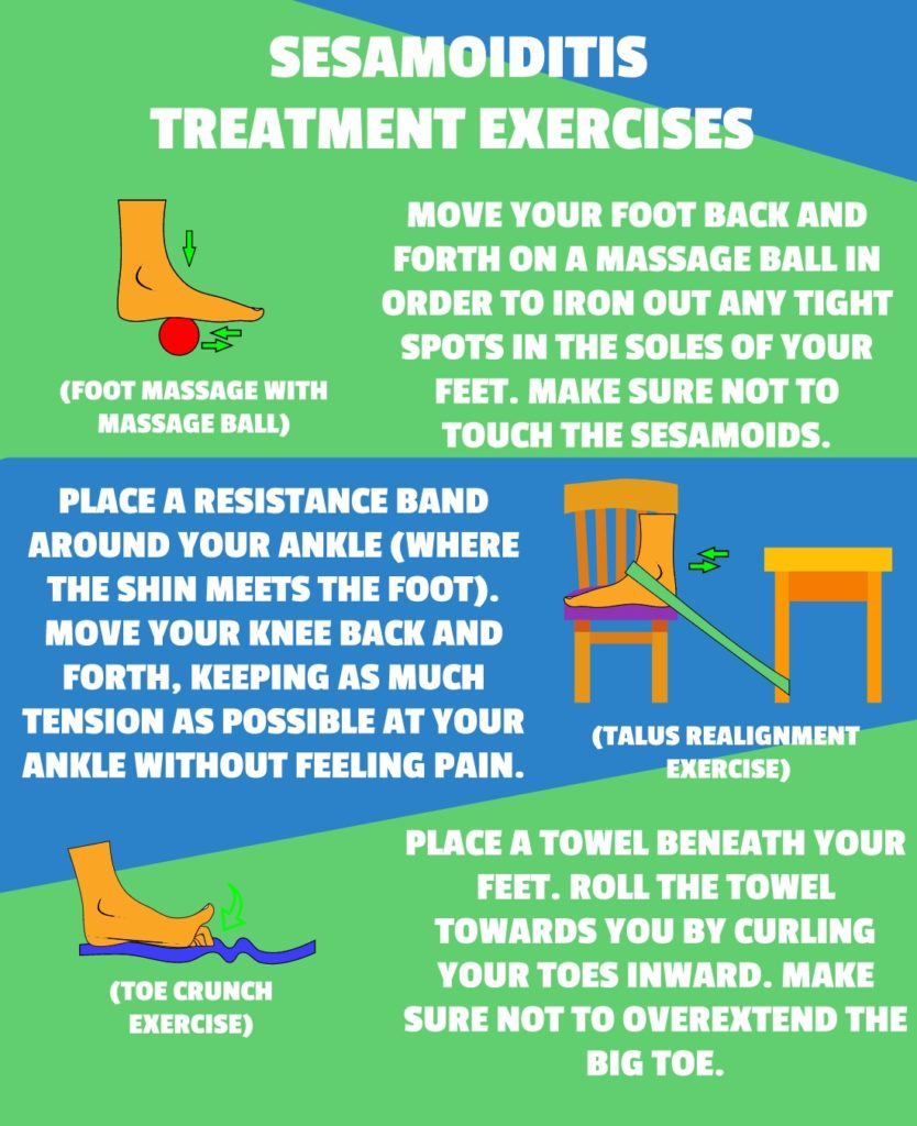 SESAMOIDITIS TREATMENT EXERCISES